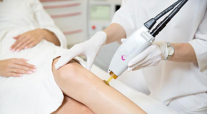 Czy depilacja laserem jest zdrowa?