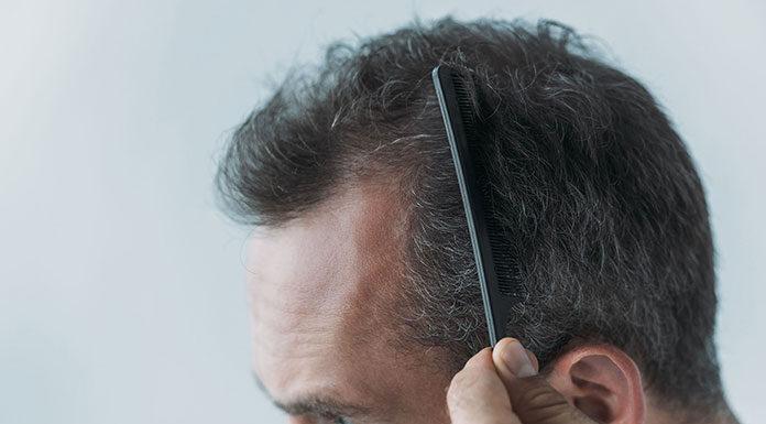 Mikropigmentacja skóry głowy- na czym polega